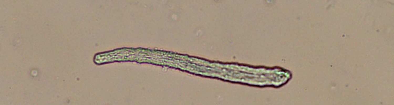 Fluke Tick Tester : Calicophoron daubneyi rumen fluke ridgeway research